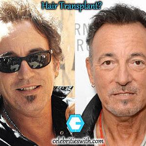 Bruce-Springsteen-Plastic-Surgery-Hair-Transplant.jpg